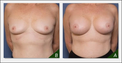 breast-augmentation-180816-ba