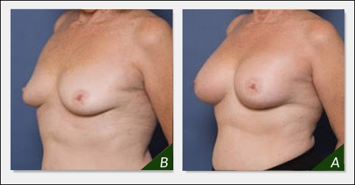 breast-enlargement-ba