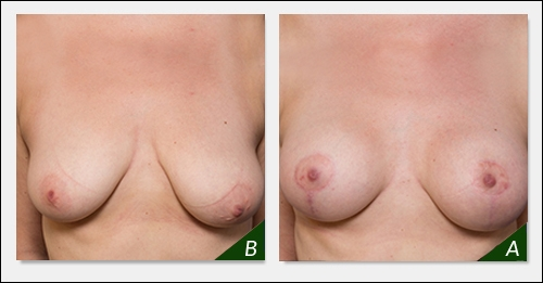 breast-augmentation-melbourne-5-bl