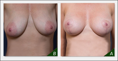 breast-lift-melbourne-bl