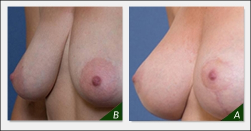 breast-lift-surgery-melbourne-bl