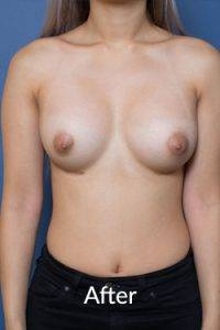 Breast enhancement Melbourne