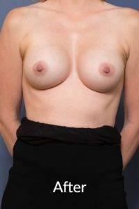 Breast Enlargement Surgery