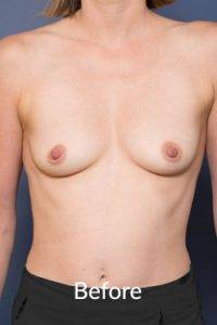 Melbourne Breast Enlargement Procedures