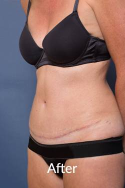 After an Abdominoplasty Procedure-Ashton-Plastic Surgery
