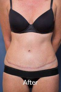 After tummy tuck surgery