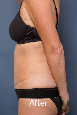 After Tummy Tuck Surgery Melbourne