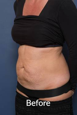 Before an Abdominoplasty Procedure