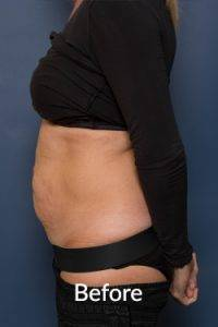 """Tummy tuck"" or abdominoplasty surgery"