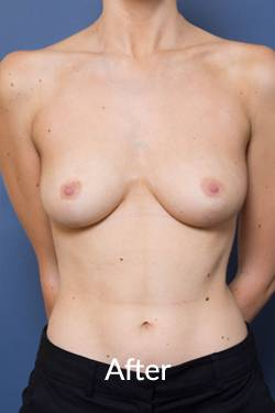 After a Breast Reduction