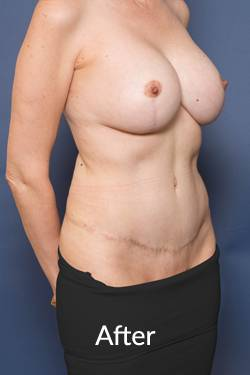 After Abdominoplasty Ashton Plastic Surgery
