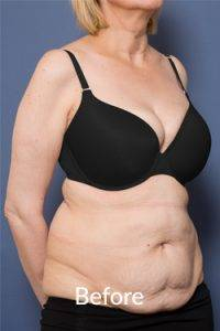 Before Abdominoplasty Ashton Plastic Surgery