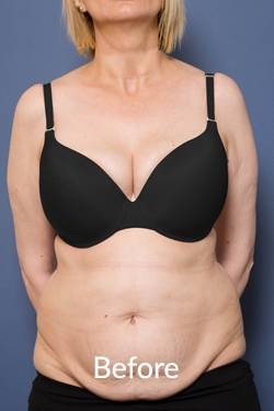 Melbourne Tummy Tuck Surgeons