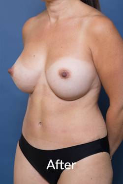 After Tummy Tuck Operation Melbourne