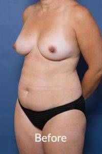 Before Tummy Tuck Operation Melbourne