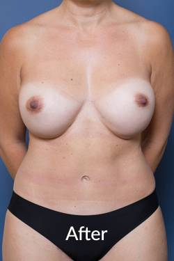 Abdominoplasty- Ashton Plastic Surgery