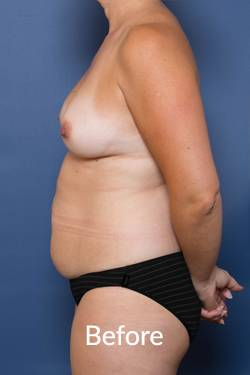 Melbourne Abdominoplasty Procedures