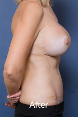 Melbourne Abdominoplasty Surgery