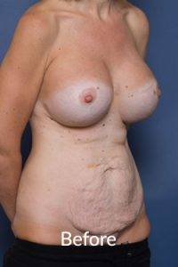 Tummy Tuck Surgery Melbourne