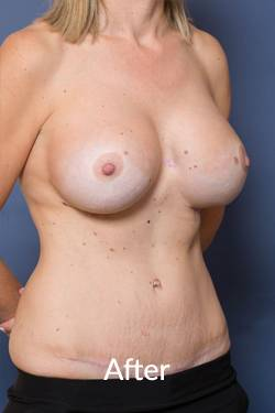Tummy Tuck Surgery near Melbourne