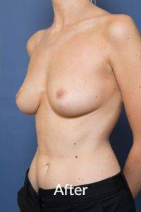 Breast Reduction Melbourne