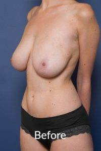 Breast Reduction Surgery Melbourne