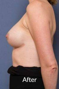 Breast Enhancement Surgery in Melbourne