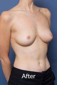 after a breast reduction procedure