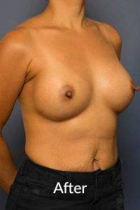 after breast augmentation melbourne