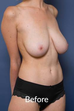 before a breast reduction procedure