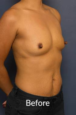 before breast augmentation Melbourne