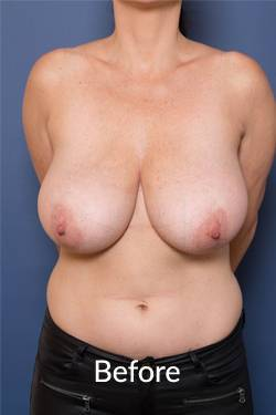 breast reduction surgical procedures Melbourne
