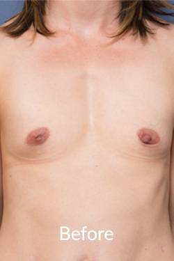 breast surgery Melbourne