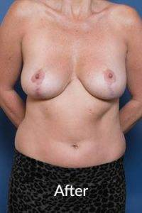 melbourne breast reduction procedure