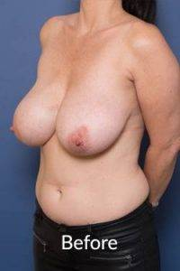 melbourne breast reduction surgery