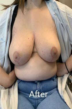 breast reduction surgery cost in Melbourne